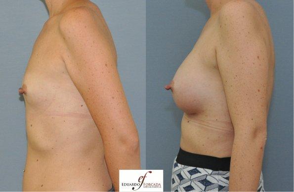 Implantes muy grandes o inflamacion después de la